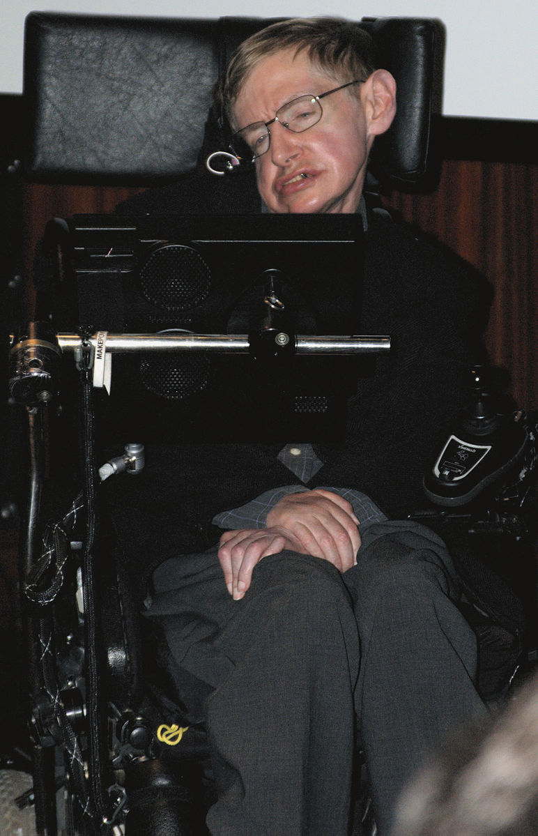 Stephen Hawking continues to work despite suffering from the locked in syndrome on the basis of a severe case of amyotrophic lateral sclerosis (ALS, Lou Gehrig's Disease).  His mental faculties are completely intact and he communicates via eye movements.