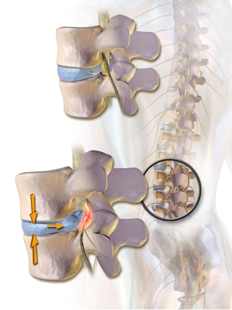 Compare the normal spinal nerve root, disc and foramen in the top illustration with the irritated spinal root, which is being compressed by the herniated disc which largely obstructs the neural foramen in the lower illustration.
