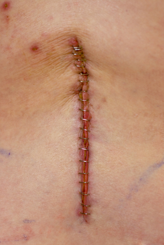 It remains for us to consider the most common serious long-term complications of lumbar surgery, before passing judgement on its advisability.