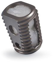 The Medtronic Infuse Bone Graft/LT-Cage Lumbar Tapered Fusion Device is commonly used as a stabilizer and source of fusion material for interbody fusions.  Usually two of these devices are placed side by side in the operative interspace.