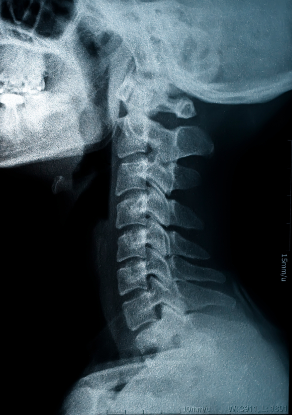 This X Ray show severe straightening of the cervical spine, which is suggestive of inflammation and pain.  The exact cause cannot be determined from this anatomic test.